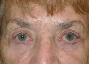 Ectropion Treatment Chicago After