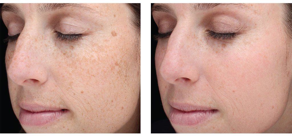 Sciton® Laser Before/After