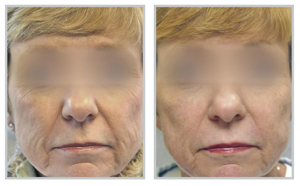 Sciton® Laser Before / After 2